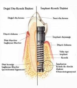 implanttr